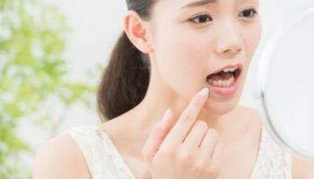 歯科矯正する しないの考察(成人矯正)のアイキャッチ画像