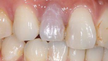 歯の漂白のアイキャッチ画像