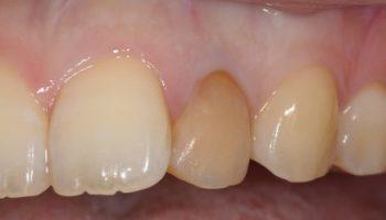 1本のみの歯のホワイトニング(ウォーキングブリーチ)のアイキャッチ画像