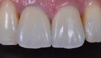 セラミッククラウンによる審美歯科治療のアイキャッチ画像