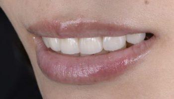 セラミックでの治療・審美歯科のアイキャッチ画像