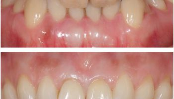 限局した歯のホワイトニングのアイキャッチ画像