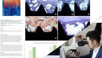 インプラントの組織学的研究の論文がOral and Maxillofacial Surgeryというジャーナルに載りましたのアイキャッチ画像