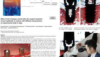 インプラント治療の論文を海外のジャーナルに共著で載せていただきましたのアイキャッチ画像